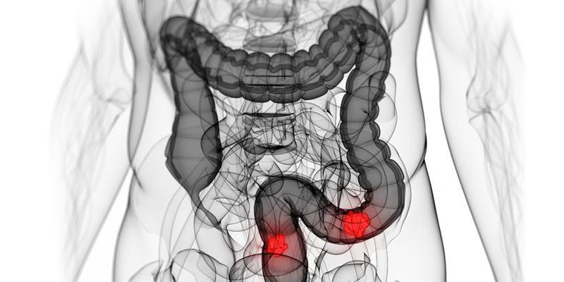 colon-cancer-inheritance